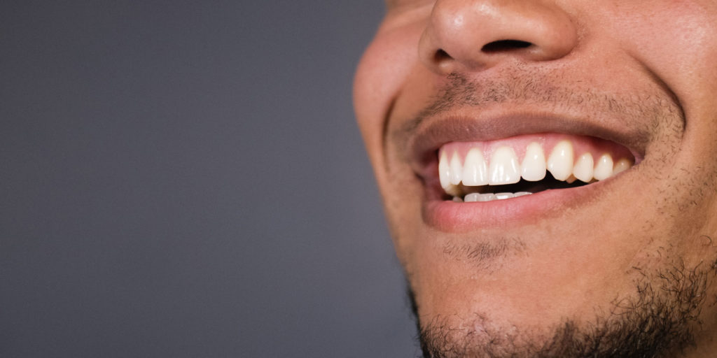 dental patient in need of gum recession treatment