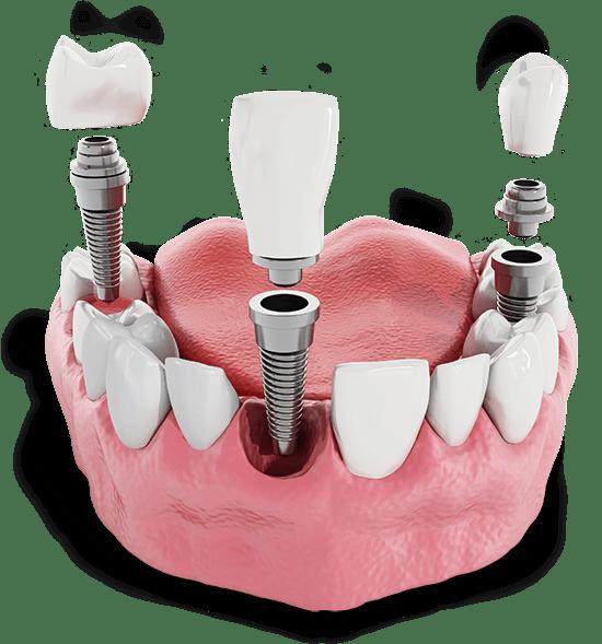 multiple dental implant model